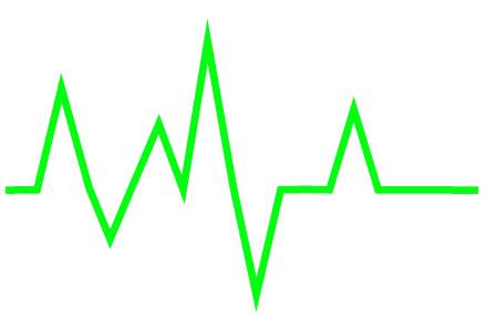 Создаем линию сердцебиения шаг 2