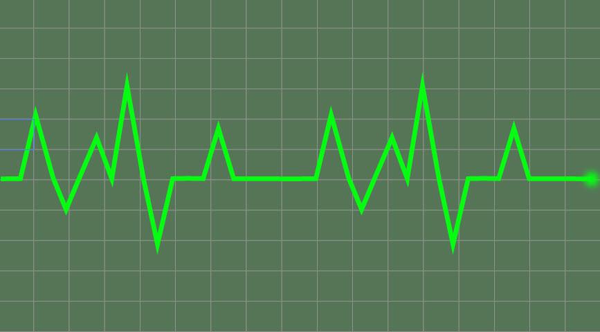Создаем линию сердцебиения